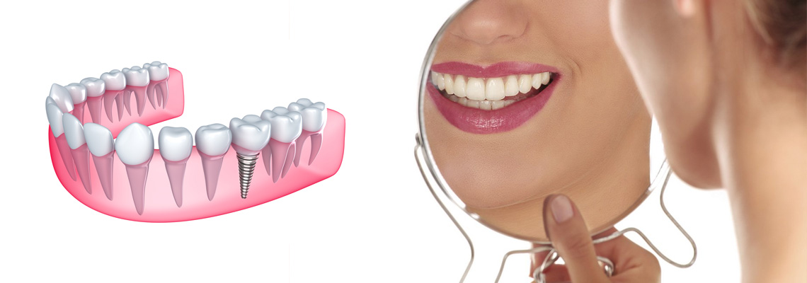 Implantologia Dentale San Babila Milano